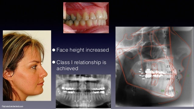 [Image: mulitidisciplinary-orthodontic-treatment...1423820049]