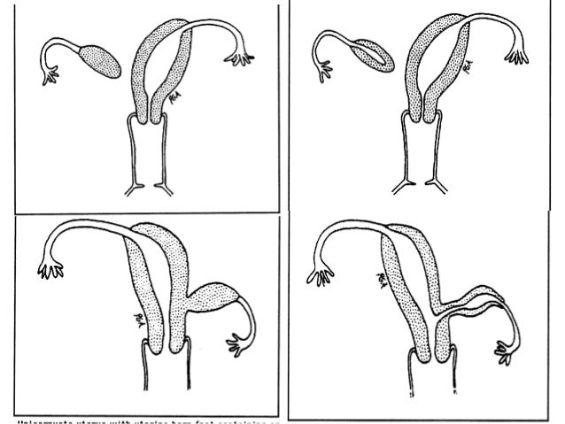 Single horn uterus Singles leipzig profil löschen
