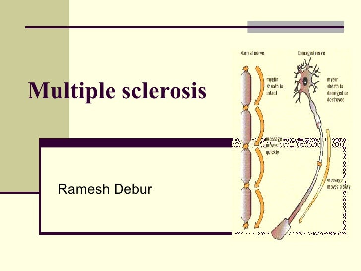 Multiple sclerosis paper