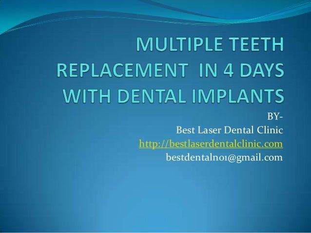 BY- Best Laser Dental Clinic http://bestlaserdentalclinic.com bestdentalno1@gmail.com