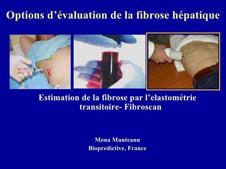 Options d'évaluation de la fibrose hépatique <ul><li>Estimation de la fibrose par l'elastométrie transitoire- Fibroscan  <...