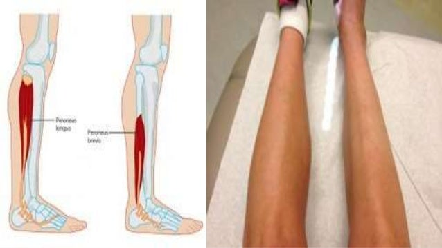 synapsis of osteoarthritis muscle atrophy and List of causes of muscle atrophy and muscle weakness and osteoarthritis, alternative diagnoses, rare causes, misdiagnoses, patient stories, and much more.