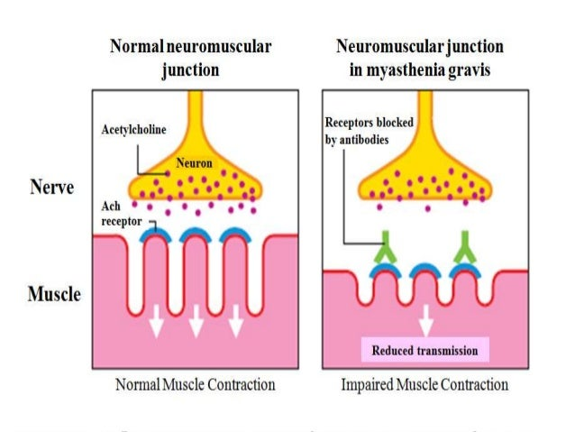 What Is Myasthenia Gravis