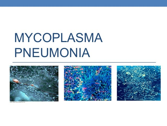 Mycoplasma pneumonia: Clinical features and management