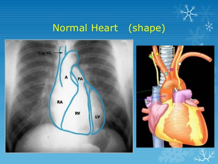 Basics Of Chest X Ray Interpretation