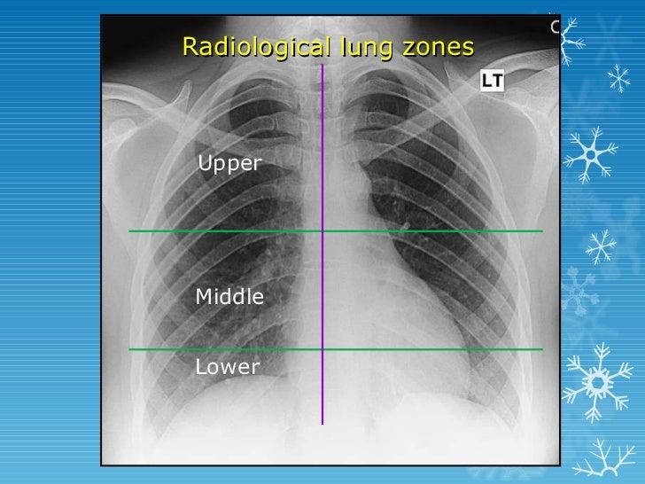 Basics of chest x ray interpretation