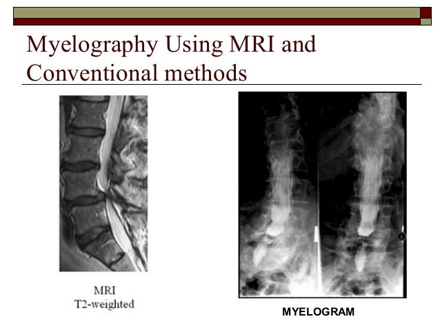 Spinal Cord - Figure 3 for article: Delayed segmental motor ...