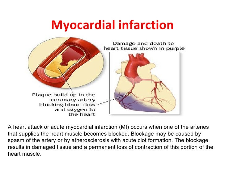 Heart attack and acute myocardial