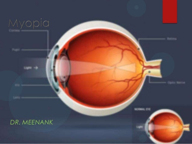 Myopia refractive error-M.B