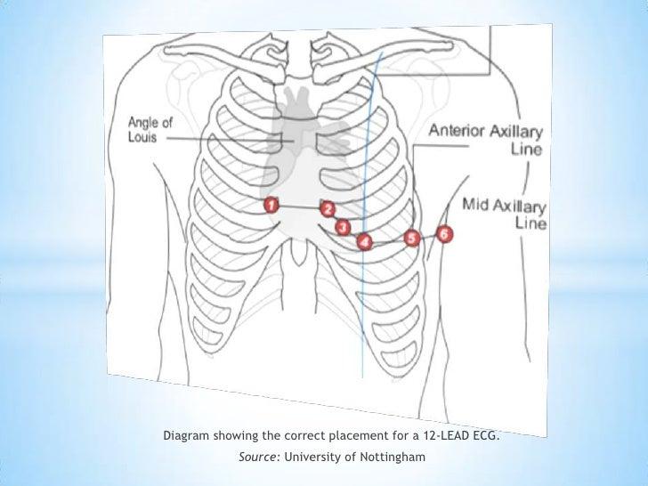 12 Lead Electrocardiogram
