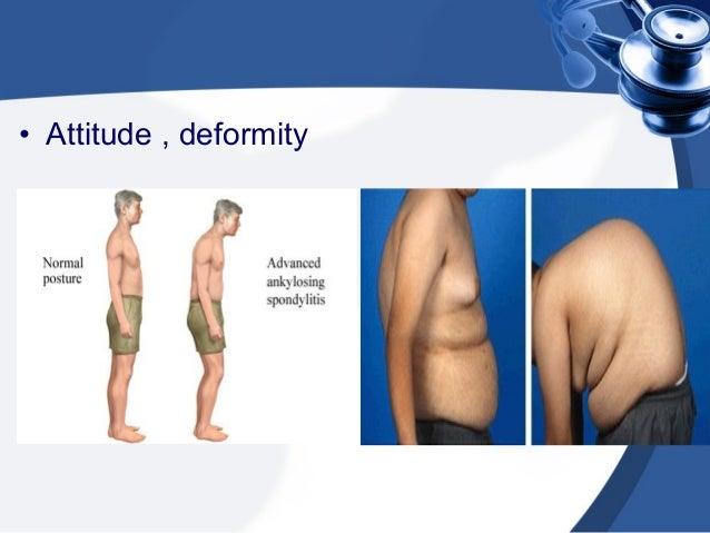 Lumbar Paraspinal Muscle Spasm Paraspinal Muscle Spasm or Not