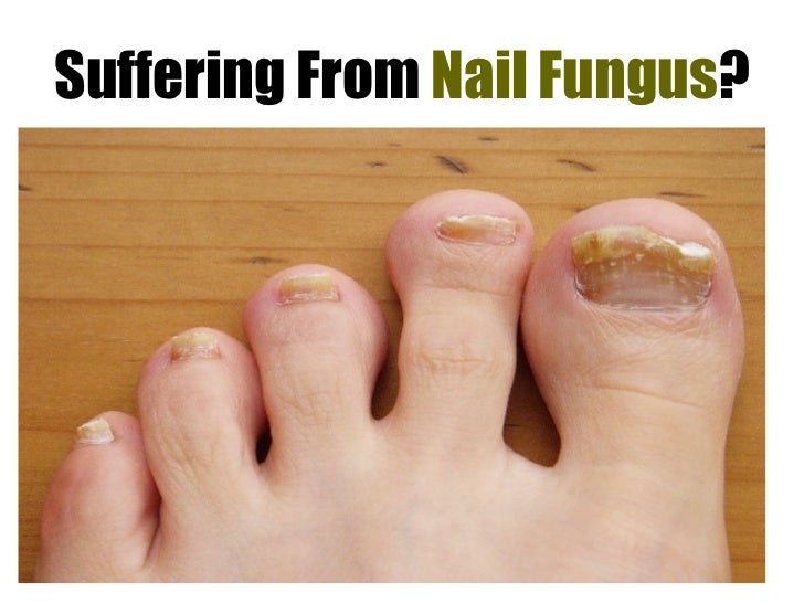 Suffering From  Nail Fungus ?