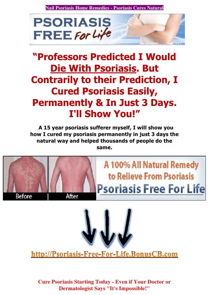 Home medical testing related to Palmoplantar pustular psoriasis: 2