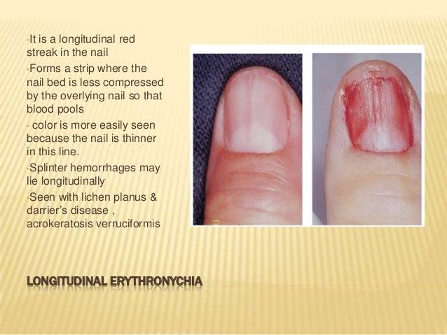 Onychopapilloma - A rare tumour of the nail apparatus (PDF ...