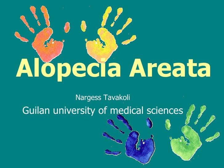 Alopecia Areata   Nargess Tavakoli Guilan university of medical sciences