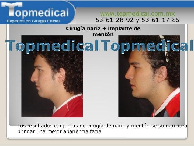 www.topmedical.com.mx 53-61-28-92 y 53-61-17-85 Los resultados conjuntos de cirugía de nariz y mentón se suman para brinda...