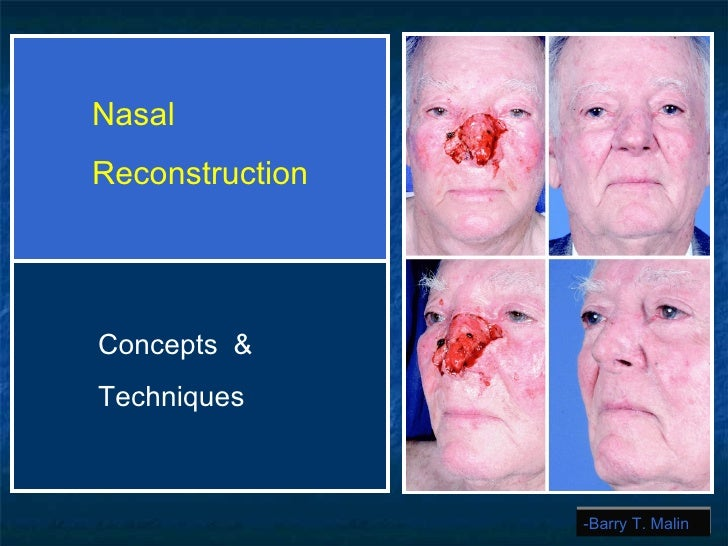 -Barry T. Malin Nasal  Reconstruction Concepts  & Techniques