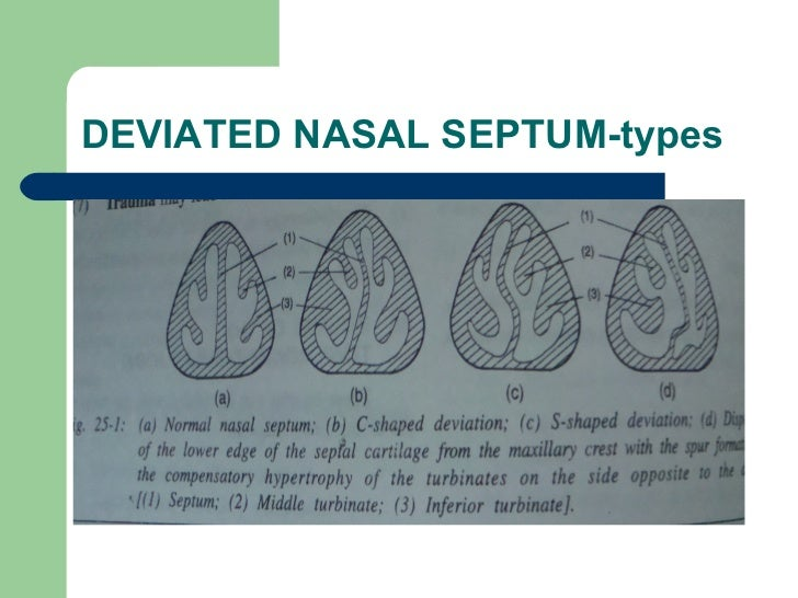 treatment of nasal polyps with steroids