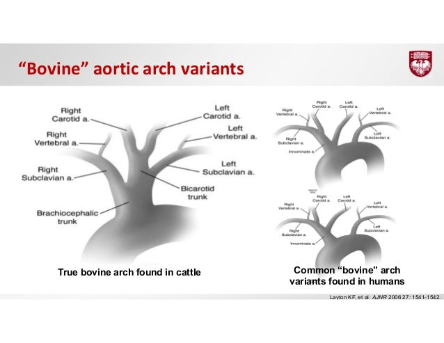 Anatomy of aortic arch