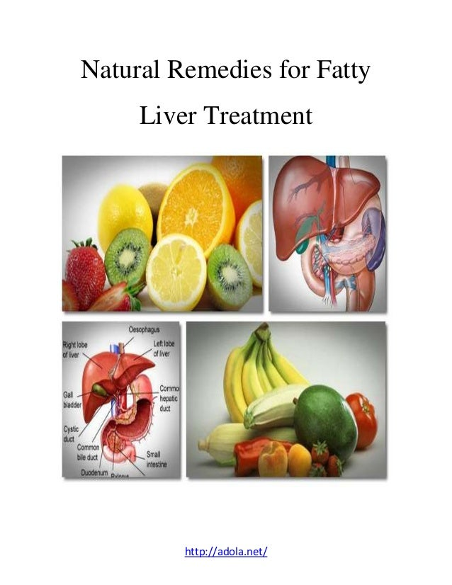 Natural remedies for fatty liver treatment