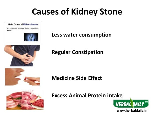 causes, symptoms and natural treatment of kidney stones – natures gist, Human Body