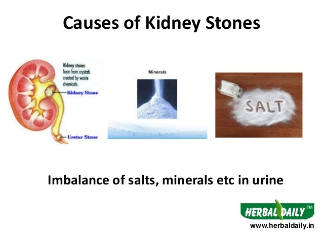 Natural Treatment For Kidney Stones 56159711
