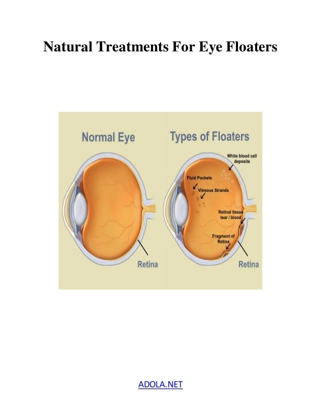 Natural Treatment For Floaters In The Eye