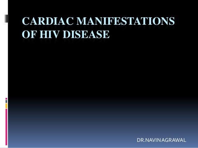 Navin presentation for hiv disease