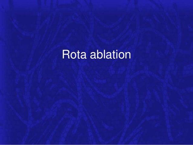 Rota ablation