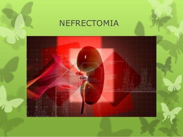 Nefrectomia (2)
