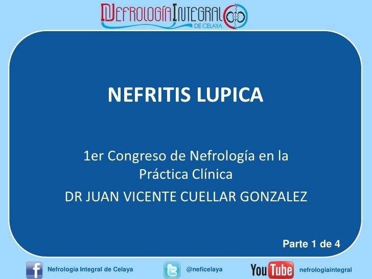 NEFRITIS LUPICA       1er Congreso de Nefrología en la               Práctica Clínica     DR JUAN VICENTE CUELLAR GONZALEZ...