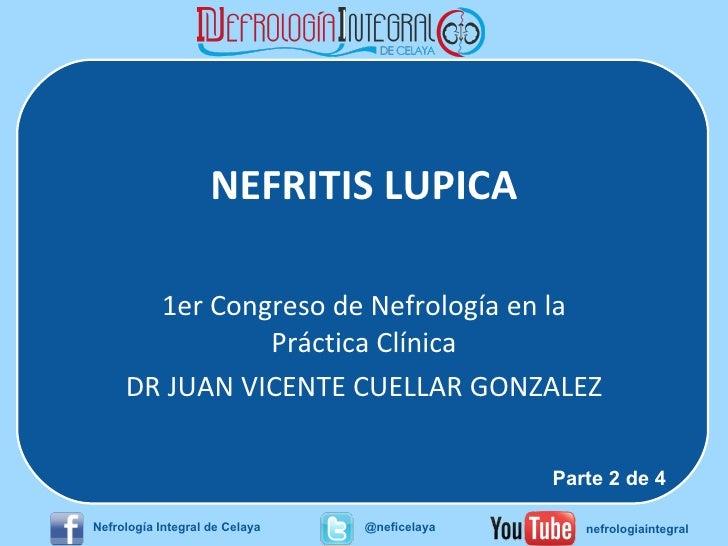 NEFRITIS LUPICA 1er Congreso de Nefrología en la Práctica Clínica DR JUAN VICENTE CUELLAR GONZALEZ Parte 2 de 4 Nefrología...