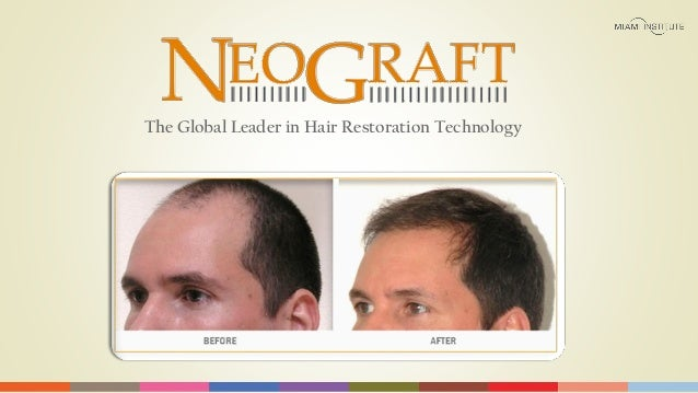 """NeoGraft: """"State-Of-The-Art""""  Solution For Hair Loss"""