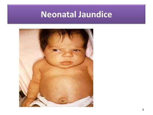 Neonatal Jaundice  1