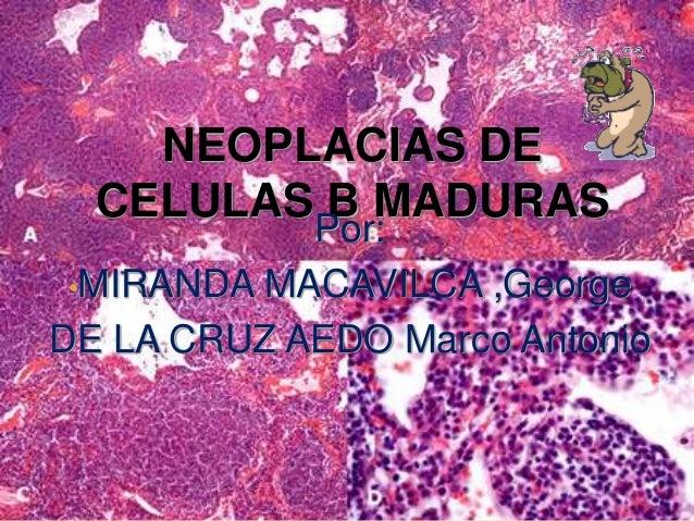 NEOPLACIAS DE CELULAS B MADURAS Por: •MIRANDA MACAVILCA ,George DE LA CRUZ AEDO Marco Antonio