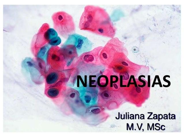NEOPLASIAS Juliana Zapata M.V, MSc
