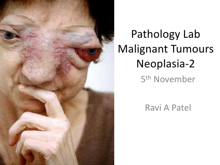 Pathology LabMalignant TumoursNeoplasia-2<br />5th November<br />Ravi A Patel<br />