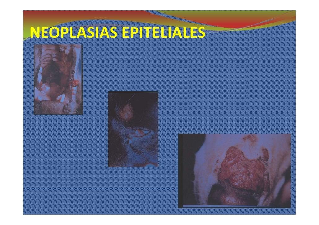 NEOPLASIAS EPITELIALES NEOPLASIASEPITELIALES