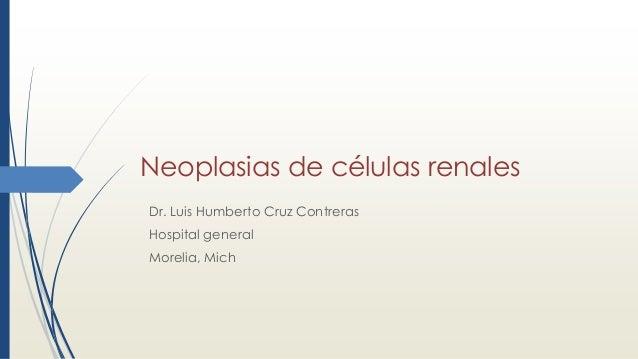 Neoplasias de células renales Dr. Luis Humberto Cruz Contreras Hospital general Morelia, Mich
