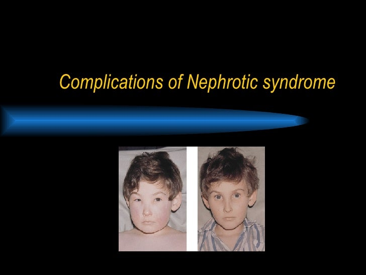 Complications of Nephrotic syndrome