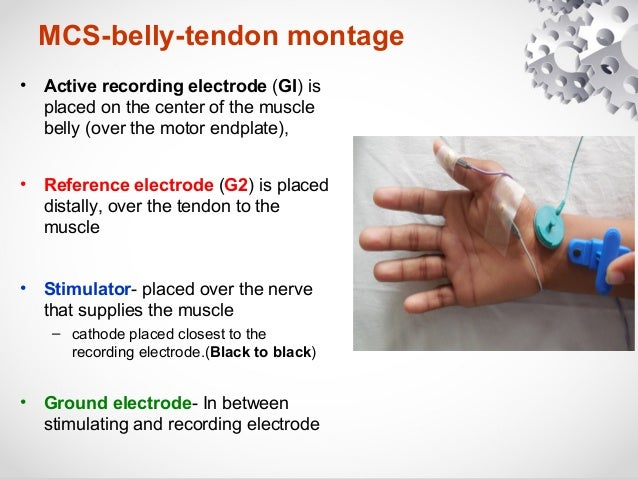 Nerve Conduction Studies & Electromyography Tests