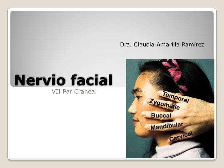 Nervio facial. Recorrido por Tomografia A