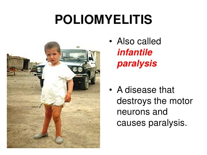 POLIOMYELITIS<br />Also called infantile paralysis<br />A disease that destroys the motor neurons and causes paralysis.<br />
