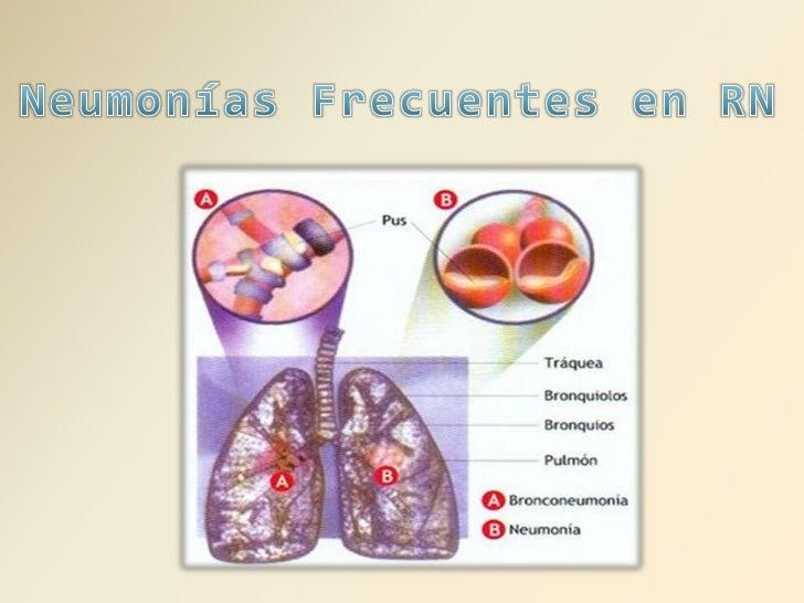 Neumonías Frecuentes en RN<br />