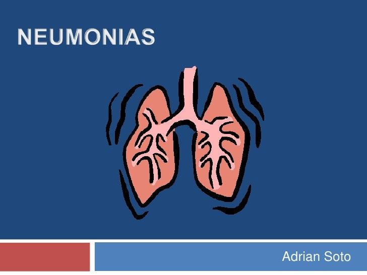 Neumonias Infantiles