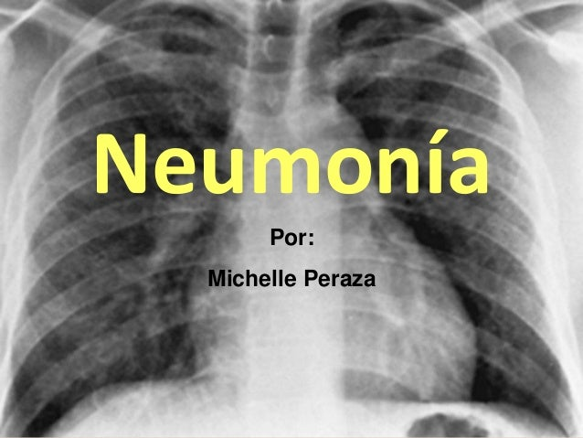 Neumonía Por: Michelle Peraza