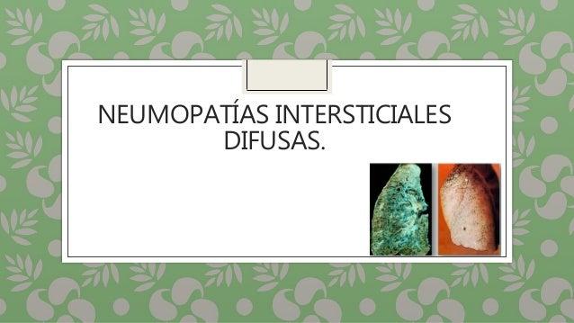 NEUMOPATÍAS INTERSTICIALES DIFUSAS.