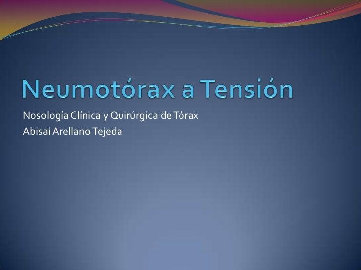 Nosología Clínica y Quirúrgica de TóraxAbisai Arellano Tejeda
