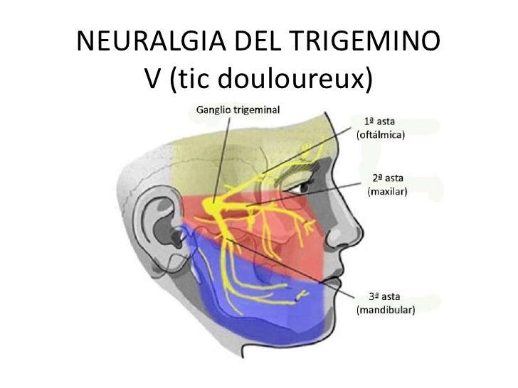 NEURALGIA DEL TRIGEMINO    V (tic douloureux)