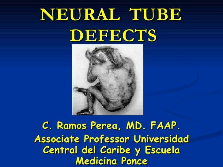 Neural tube defects